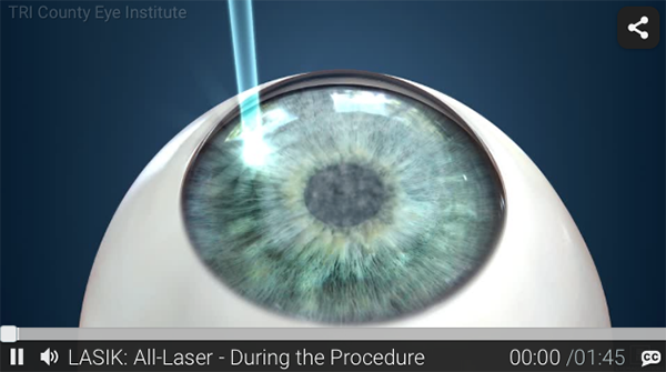 LASIK: All-Laser Video